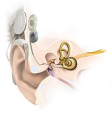 Anatomie Cochlea-Implantat