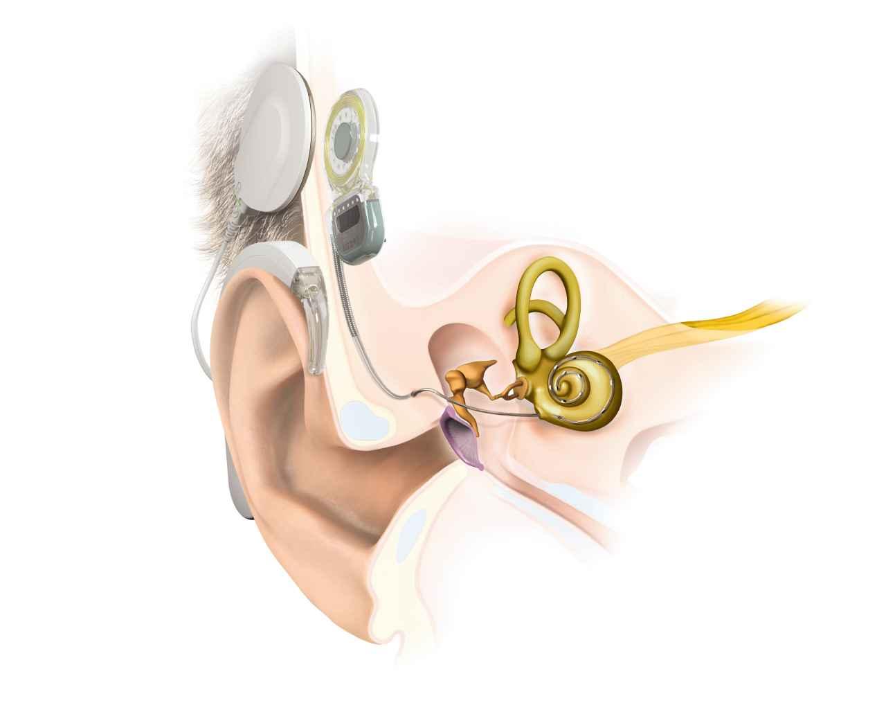 EarAnatomy_SYNCHRONY_DLCoil_RW (1)