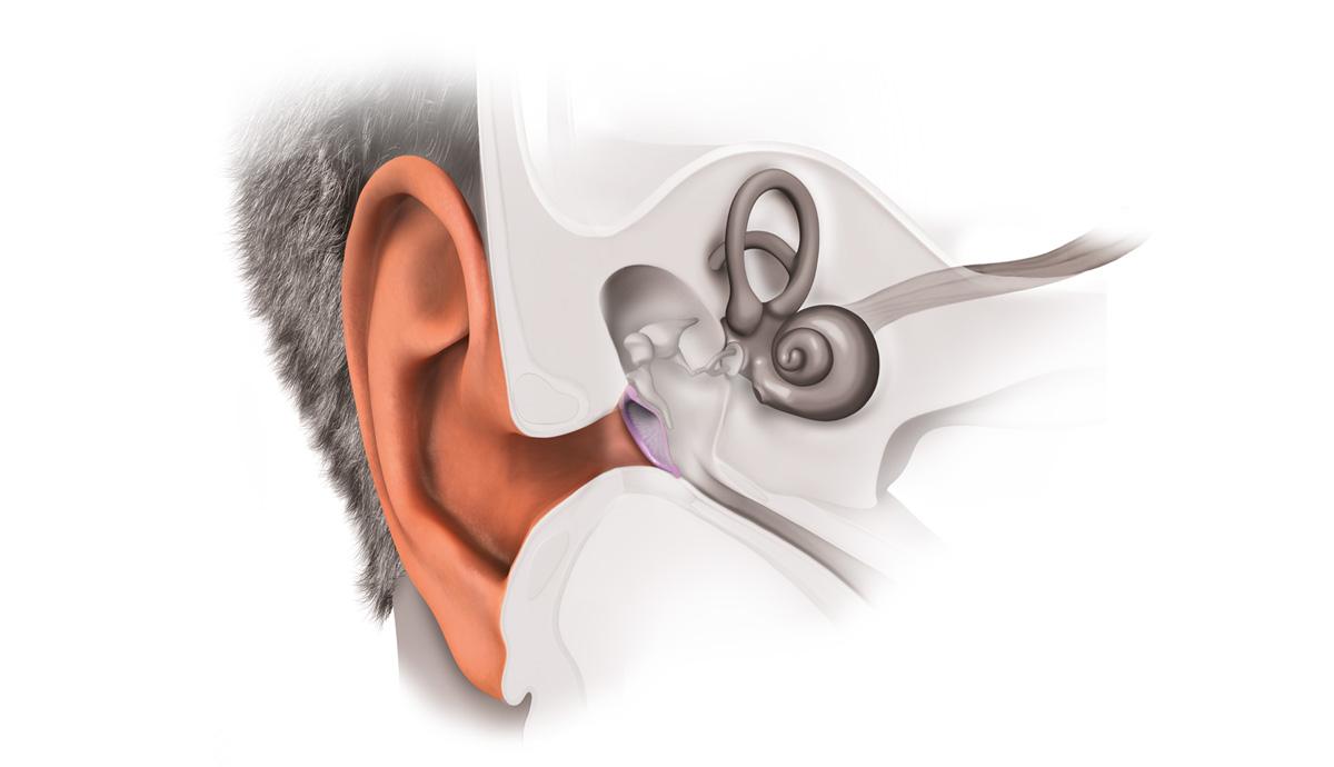 Porque es importante cuidar nuestros oidos