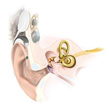 Anatomy Cochlear Implant EAS