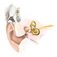 Anatomy Cochlear Implant