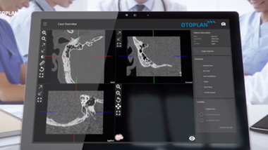 Unparalleled Surgical Planning at Your Fingertips - New Features in OTOPLAN