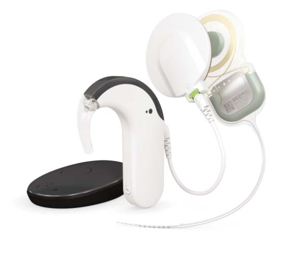 Cochlear Implants SYNCHRONY System