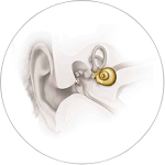 High Frequency Sensorineural Hearing Loss