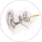 Retrocochlear Hearing Loss (Neural Hearing Loss)