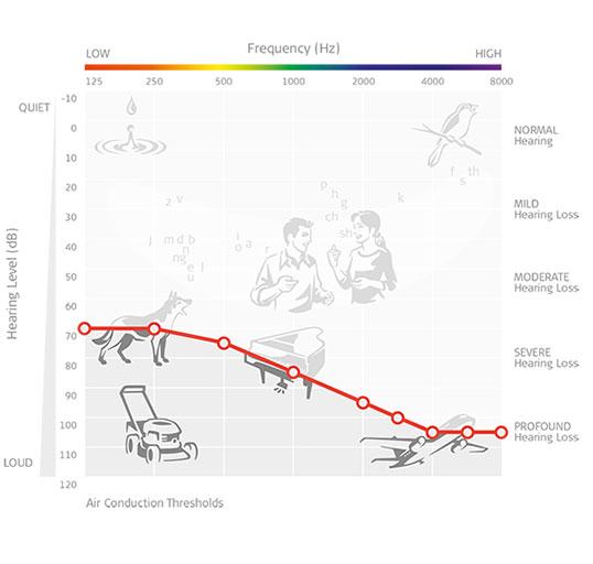 Severe-to-Profound-SNHL-graph