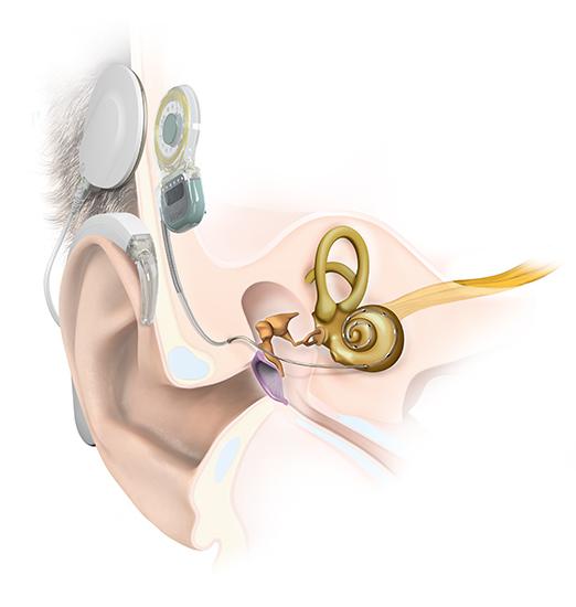 Hearing Africa EAR